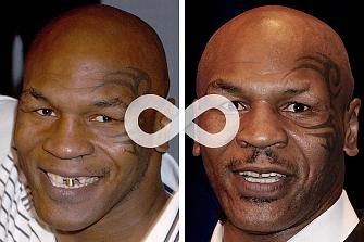 Железные зубы «Железного Майка»