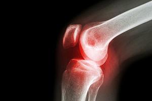 Болезни десен провоцируют артрит