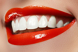 Пластика десны передних зубов