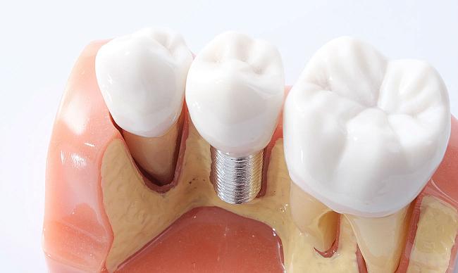 Производители имплантов зубов