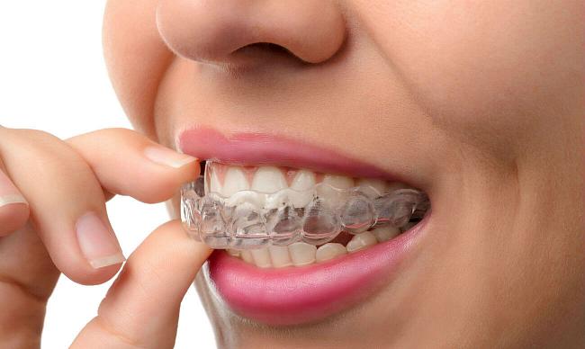 Как выровнять зубы без брекетов?