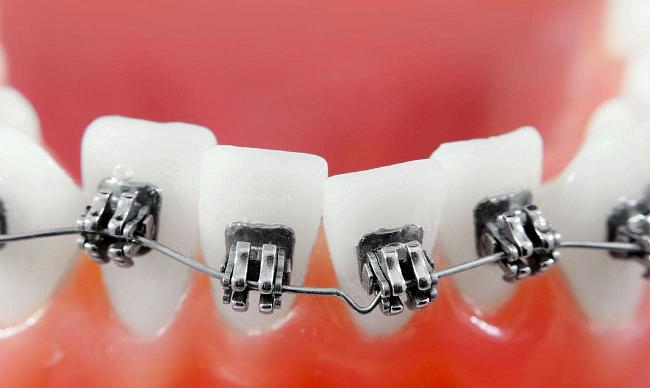 Скученность зубов лечение без брекетов