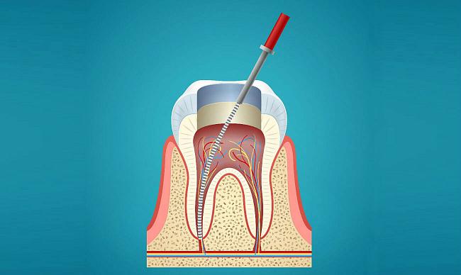 Клиника перфорации зуба