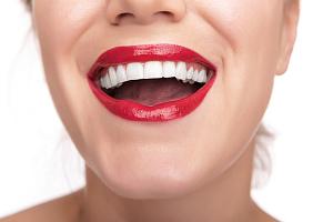 виниры на зубы срок эксплуатации
