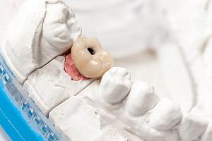 Металлокерамические коронки на импланты