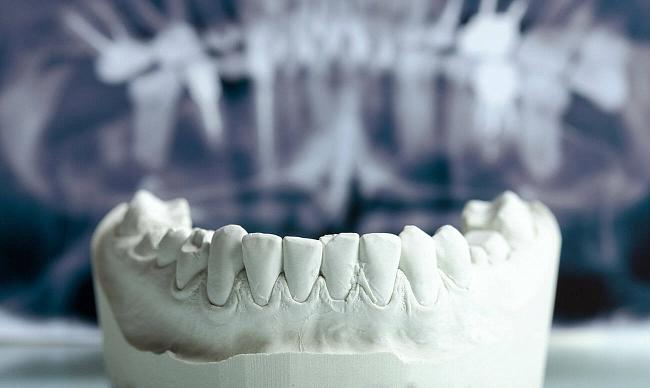 Зачем нужно восстановление кости?
