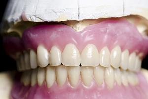 Все виды зубных протезов