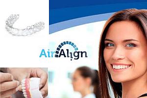 Элайнеры Air Align