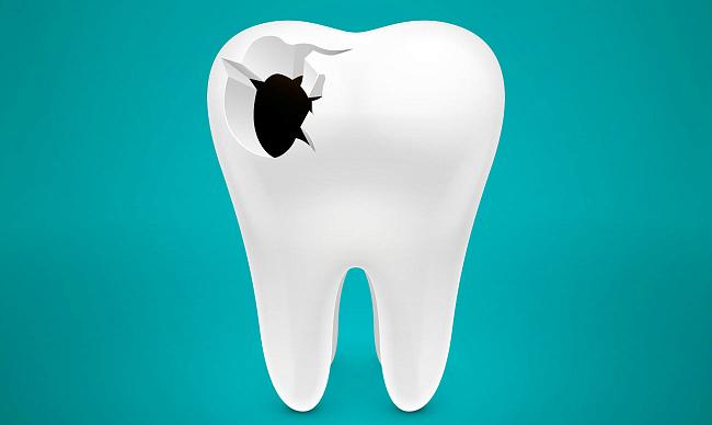 исправление зуба при помощи винира
